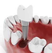 dental implants in new orleans, dentist in metairie